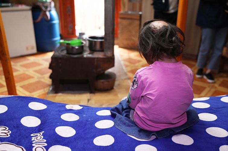 save the burned child in mogolia